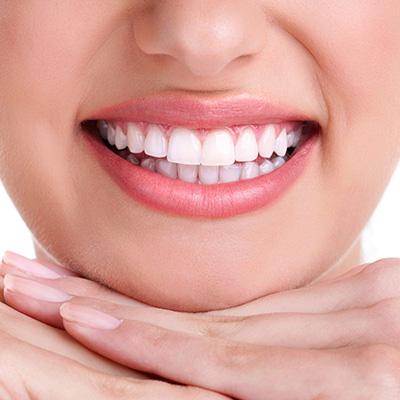 Restauri dei denti